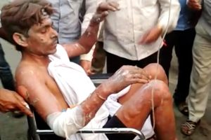 Raebareli: A labourer who sustained burn injuries at NTPC's Unchahar Power Plant being brought to Raebareli district hospital for treatment on Wednesday. At least 16 people are feared dead and several others have been injured after a boiler went off at the plant. PTI Photo   (PTI11_1_2017_000189B)
