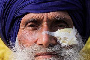 सिंघु बॉर्डर पर नए कृषि कानूनों के खिलाफ प्रदर्शन कर रहे 70 साल के संतोख सिंह को आंसू गैस के शेल से चोट लगने के बाद टांके लगाए गए थे. (फोटो: रॉयटर्स)