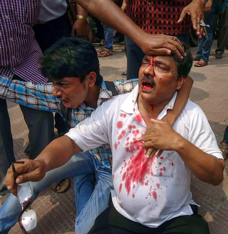 Burdwan: A man with injuries during a violent clash between members of two political parties at Panchayat polls' nomination filing, in Burdwan on Saturday. PTI Photo (PTI4_7_2018_000150B)